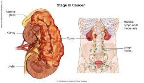 kanker ginjal